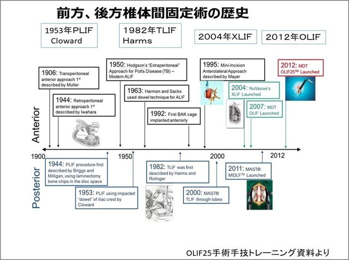前方、広報椎体固定術の歴史.jpg