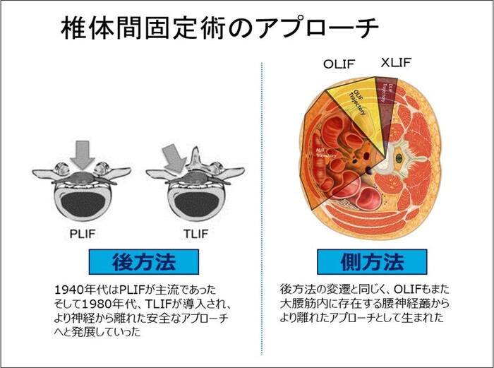 椎体間固定術のアプローチ.jpg