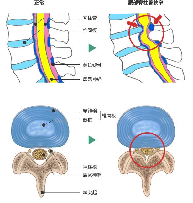 「脊柱管狭窄症」の画像検索結果