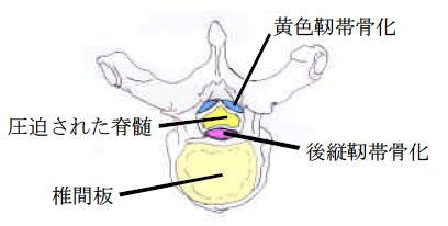 黄色 靱帯 骨 化 症